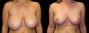 Breast Reduction - reduction mammoplasty