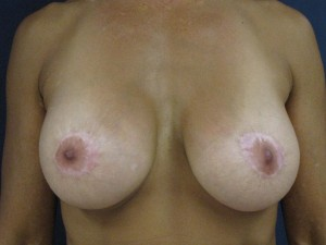 Frontal-view-of-donut-mastopexy