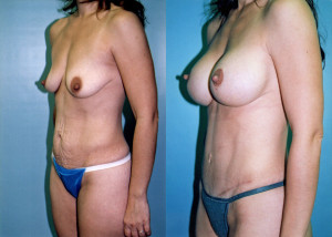 breast-augmentation-tummytuck-beforeafter
