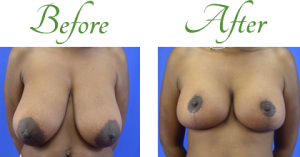 breast-reduction-before-after