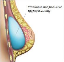 Установка импланта под грудную мышцу