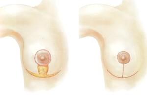 Увеличение грудных желез при беременности